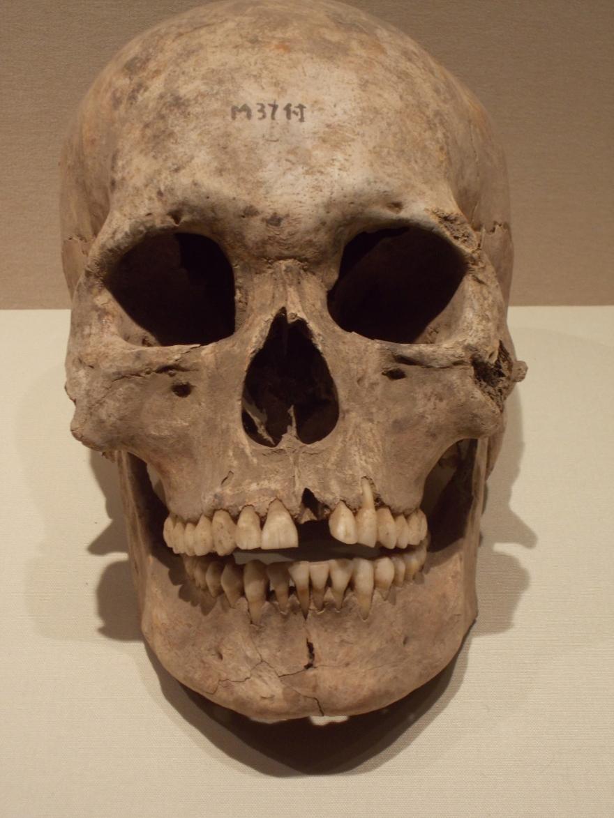 Prehistoric Shandong Skull